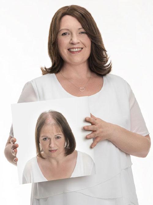 Microlines-Belinda hair loss model