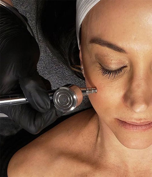 oxygen-infusion facial