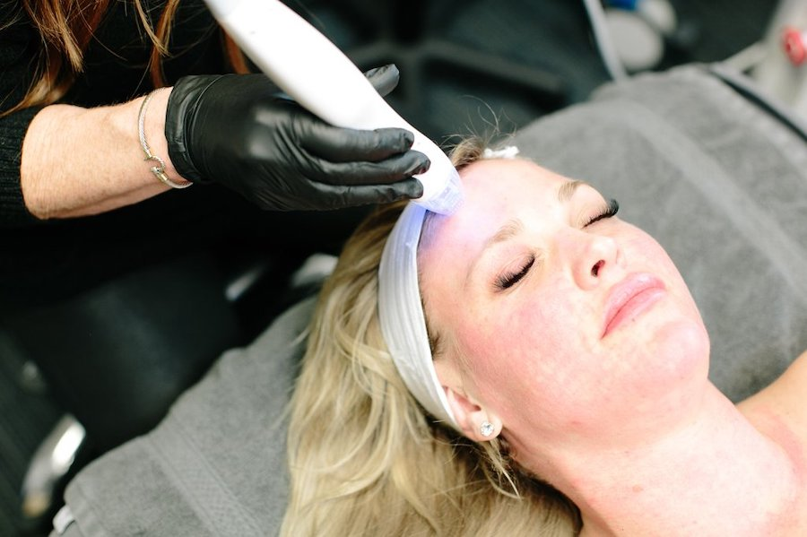 Microneedling treatment in Fort Collins